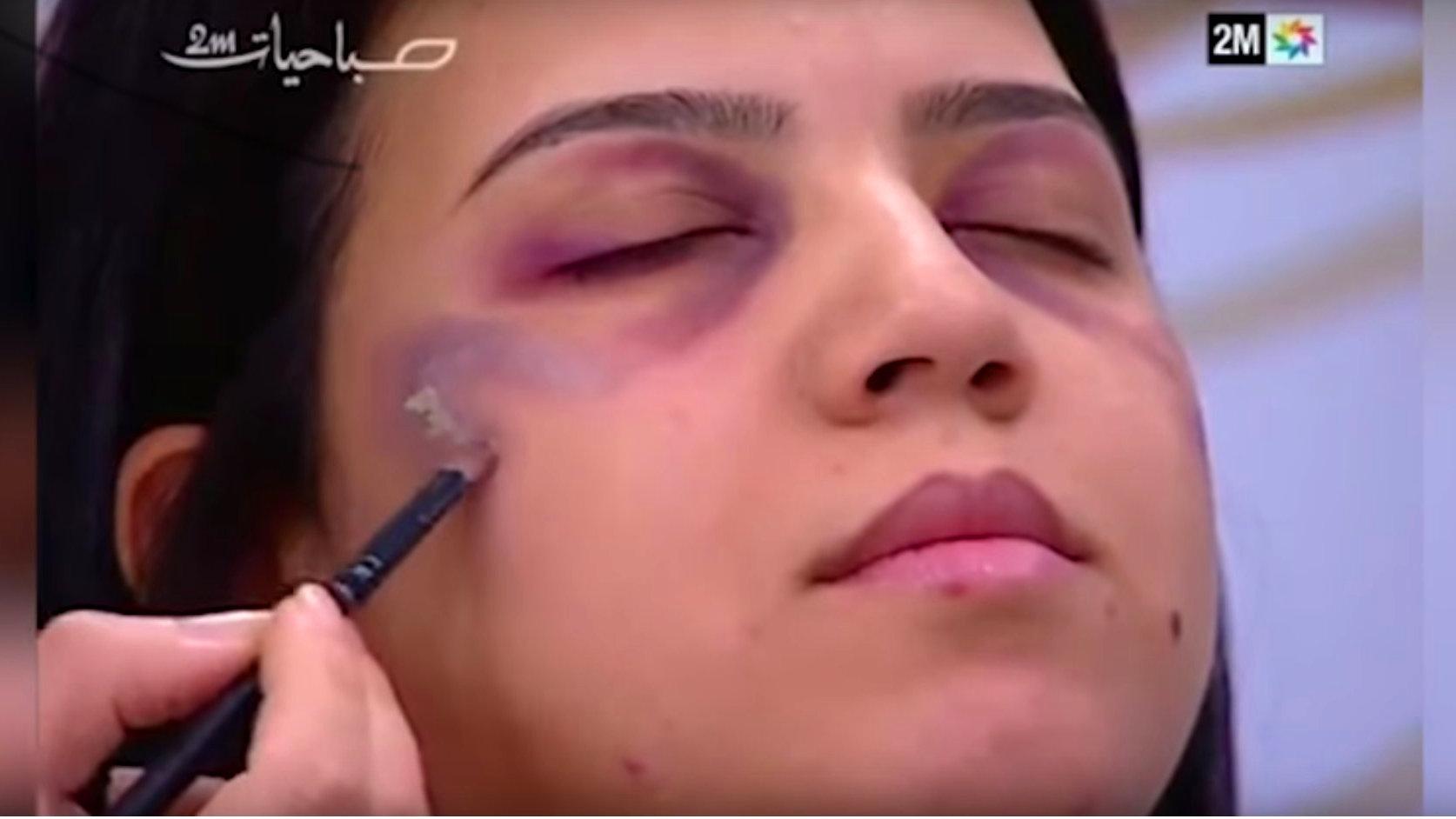 Marokko: TV-Sender gibt Schminktipps für geschlagene Frauen
