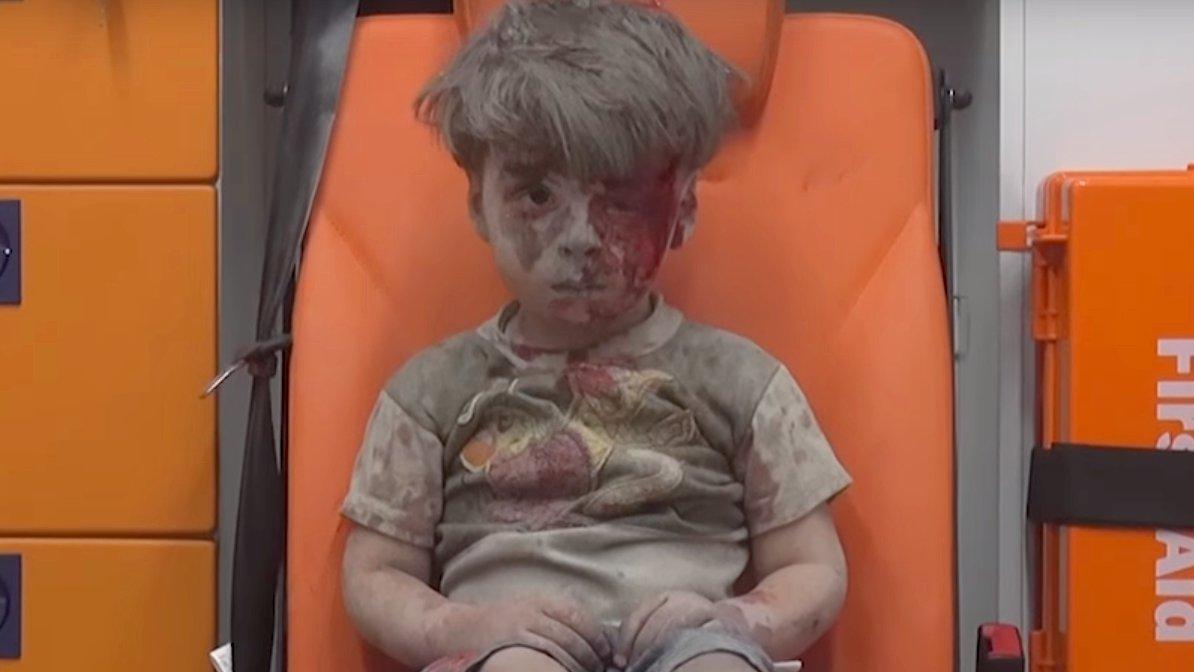 dbate-flash-omran-aleppo-junge-gesicht-krieg-syrien